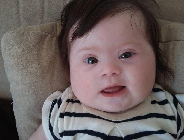 """""""Aqui está a minha garotinha, Louise. Ela tem quatro meses de idade, duas pernas, dois braços e um cromossomo extra"""", escreveu"""