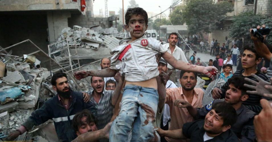 16.jun.2015 - Sírios socorrem um garoto ferido, após um bombardeio realizado por forças leais ao presidente sírio Bashar al-Assad, no bairro de Douma, Damasco (Síria), nesta terça-feira (16)