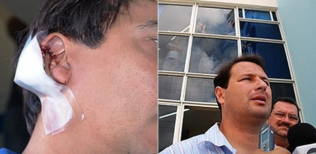 Paulo Corintho que teve a orelha mordida por Dudu Hollanda em 2009