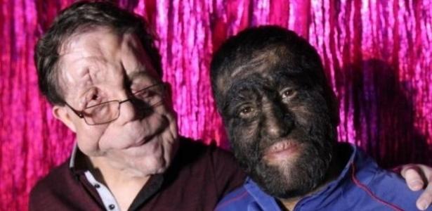 O apresentador e ator Adam Pearson, que tem neurofibromatose (esq) com Jesus 'Chuy' Aceves, que tem tem um problema genético raro chamado hipertricose