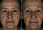 Conheça o gene que faz você parecer menos ou mais jovem - Reprodução/Cell Press