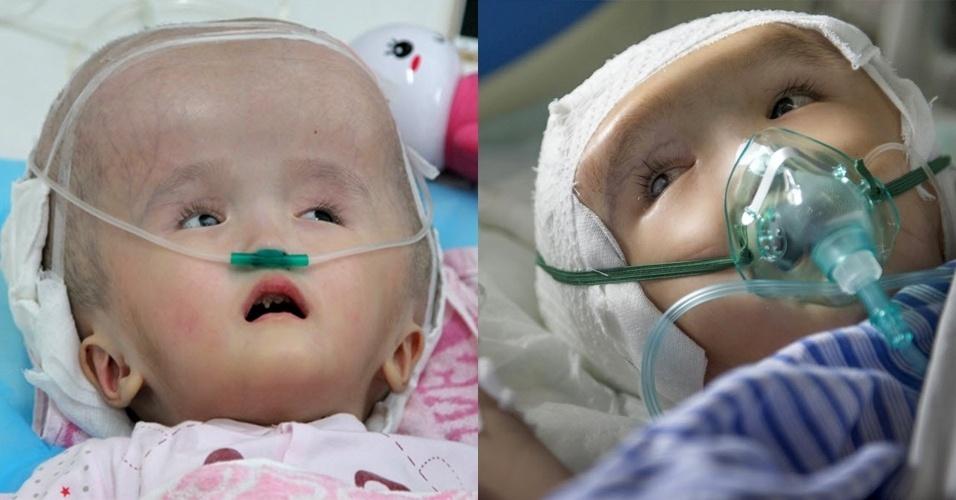 14.jul.2015 - À esquerda, Hanhan, 3, é fotografada antes de uma cirurgia para implantar três peças de malha de titânio para substituir o crânio, em um hospital de Changsha, na província chinesa de Hunan. À direita, a menina se recupera depois do procedimento médico. De acordo com a mídia local, Hanhan sofre de hidrocefalia, uma condição médica que causa a acumulação anormal de fluido nas cavidades do cérebro. A paciente ainda teré que passar por mais cirurgias antes da recuperação total, segundo o hospital