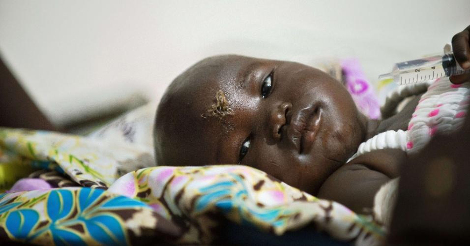 5.nov.2015 - A bebê Nyloak Thong, de 13 meses, recebe atendimento médico em hospital após sobreviver à queda de um avião próximo à capital do Sudão do Sul, Juba