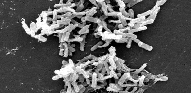 [Imagem: micrografia-eletronica-de-varredura-most...15x300.jpg]