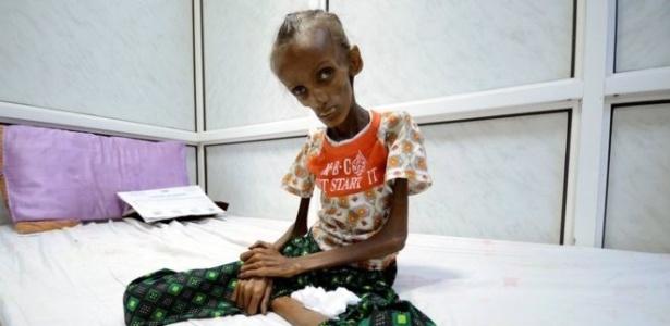 Saida começou a sofrer de desnutrição há cinco anos, segundo a família, mas sua situação se agravou com a guerra civil no país