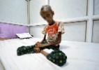 Jovem de 18 anos definha com a desnutrição causada pela guerra no Iêmen - Abduljabbar Zeyad/Reuters