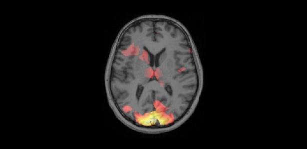 Varredura da atividade cerebral mostrando padrões de atividade relacionados à memória do medo