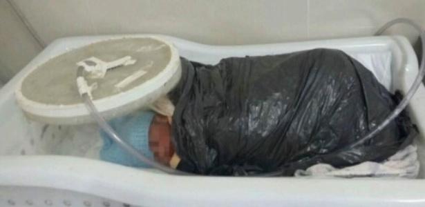 Bebê prematuro foi enrolado em manta e saco de lixo para manter temperatura corporal