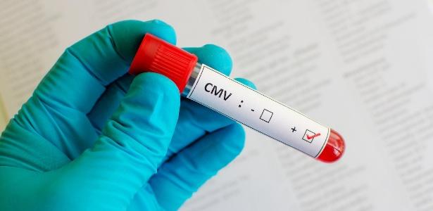 Citomegalovírus (CMV), que era tido como responsável pela maior parte dos casos de microcefalia e surdez no mundo e que volta a causar alertas da comunidade médica internacional
